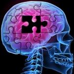 ภาวะสมองเสื่อม ตอน 2