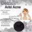 """สบู่ Detox&Antiacne """"by ami"""" thumbnail 2"""