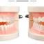 ฟันยางกันกัดฟัน ซิลิโคนครอบฟัน Fawnmum thumbnail 1
